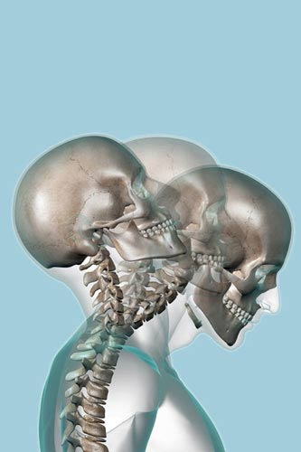 Auto Accident Chiropractor Vancouver WA