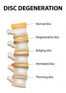 Herniated Disc Treatment Vancouver WA